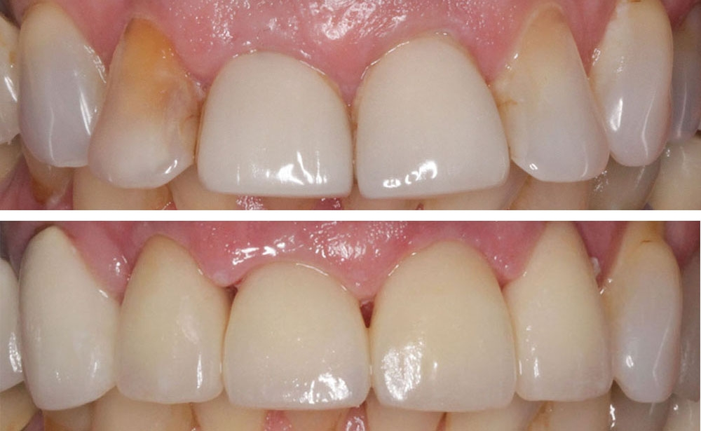 Misaligned teeth with Aged Composite (white) restorations to Veneers