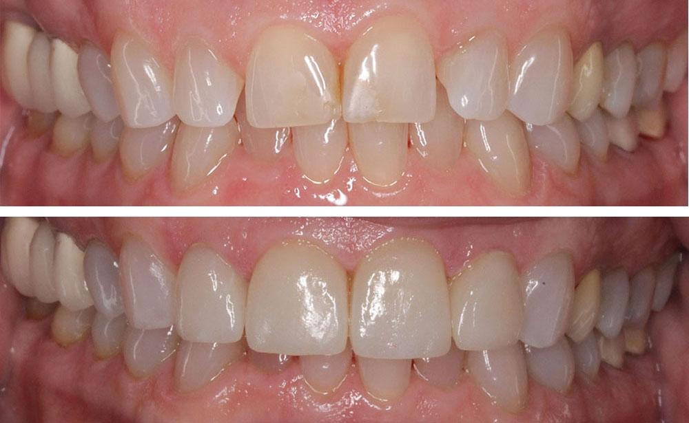 Misaligned teeth with spaces to Veneers