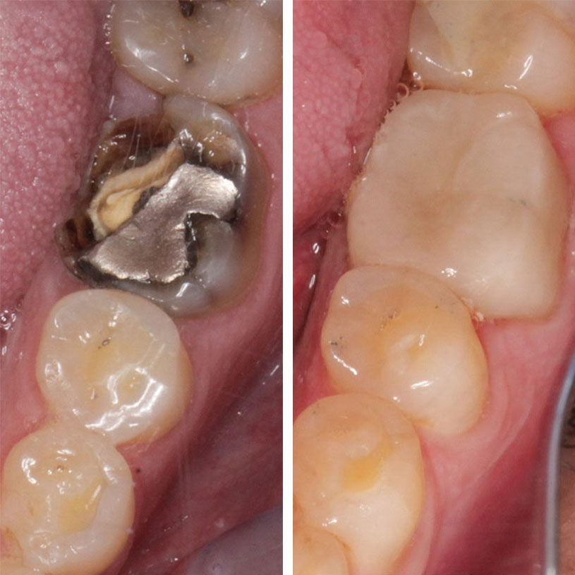 Broken tooth with Amalgam (silver) filling to Ceramic Crown